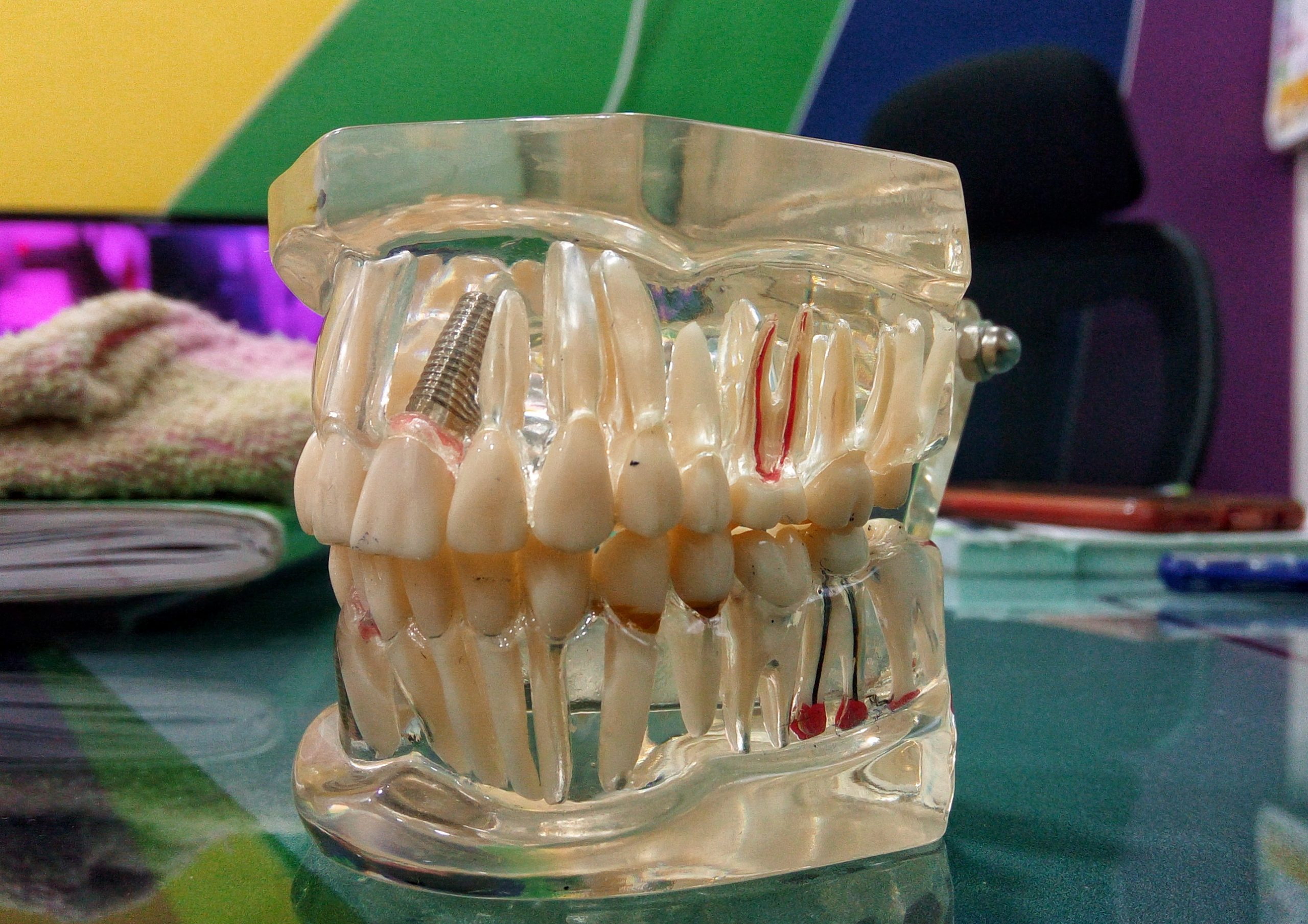 Dummy Jaw at a dental clinic